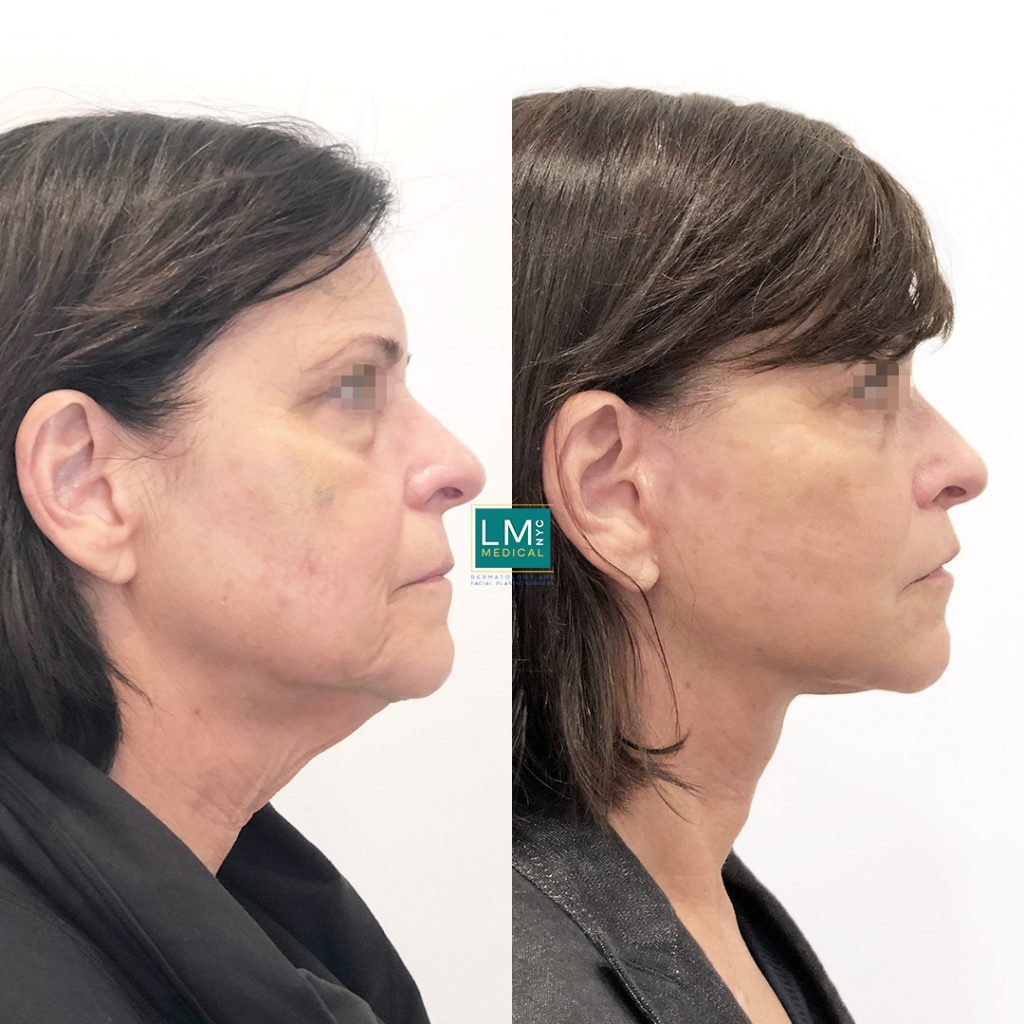 Female patient before and after facelift - right profile