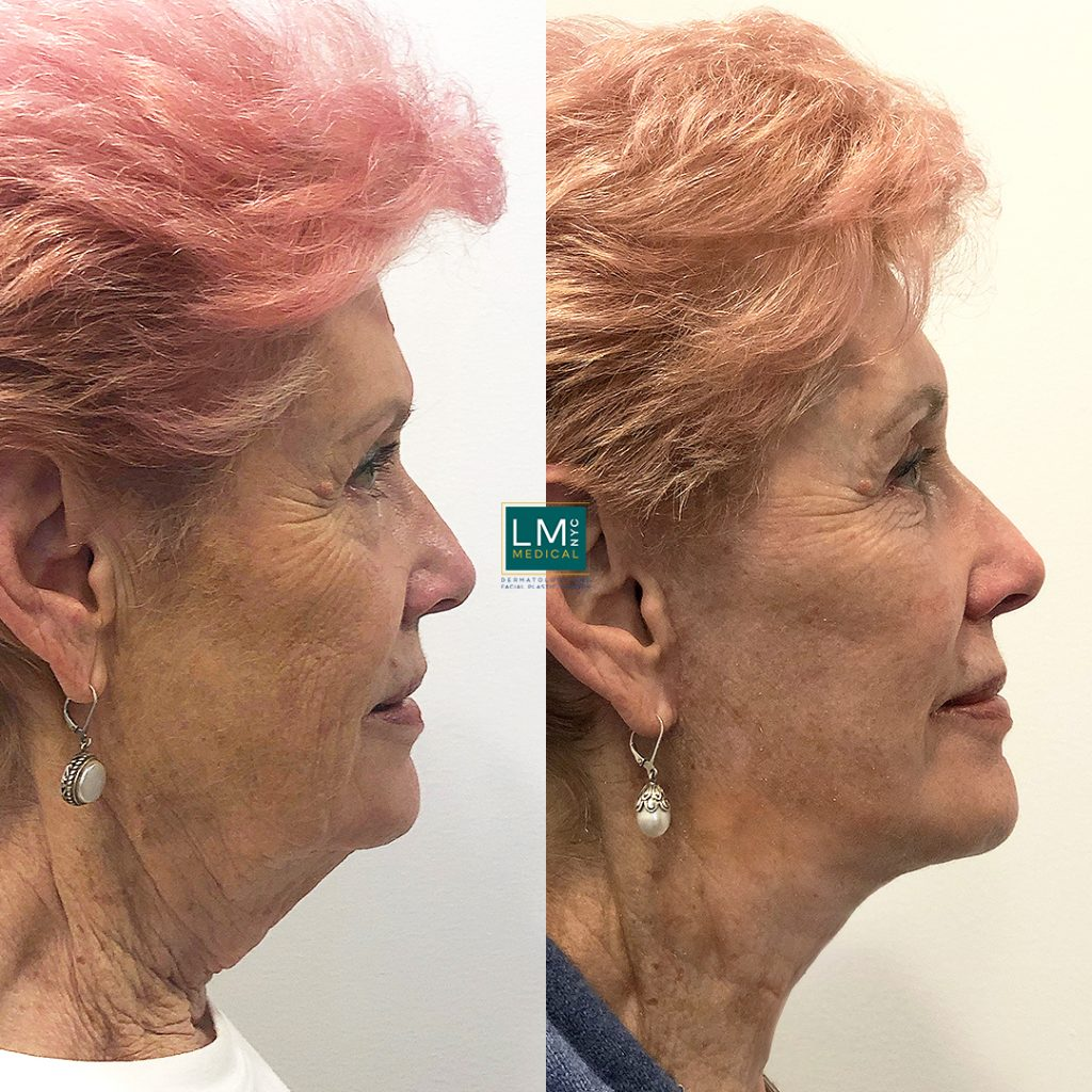 Female patient before and after facelift -right profile