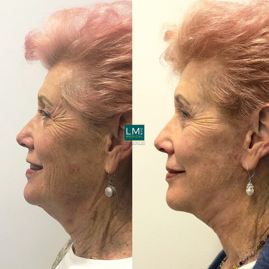 Female patient before and after facelift - left profile