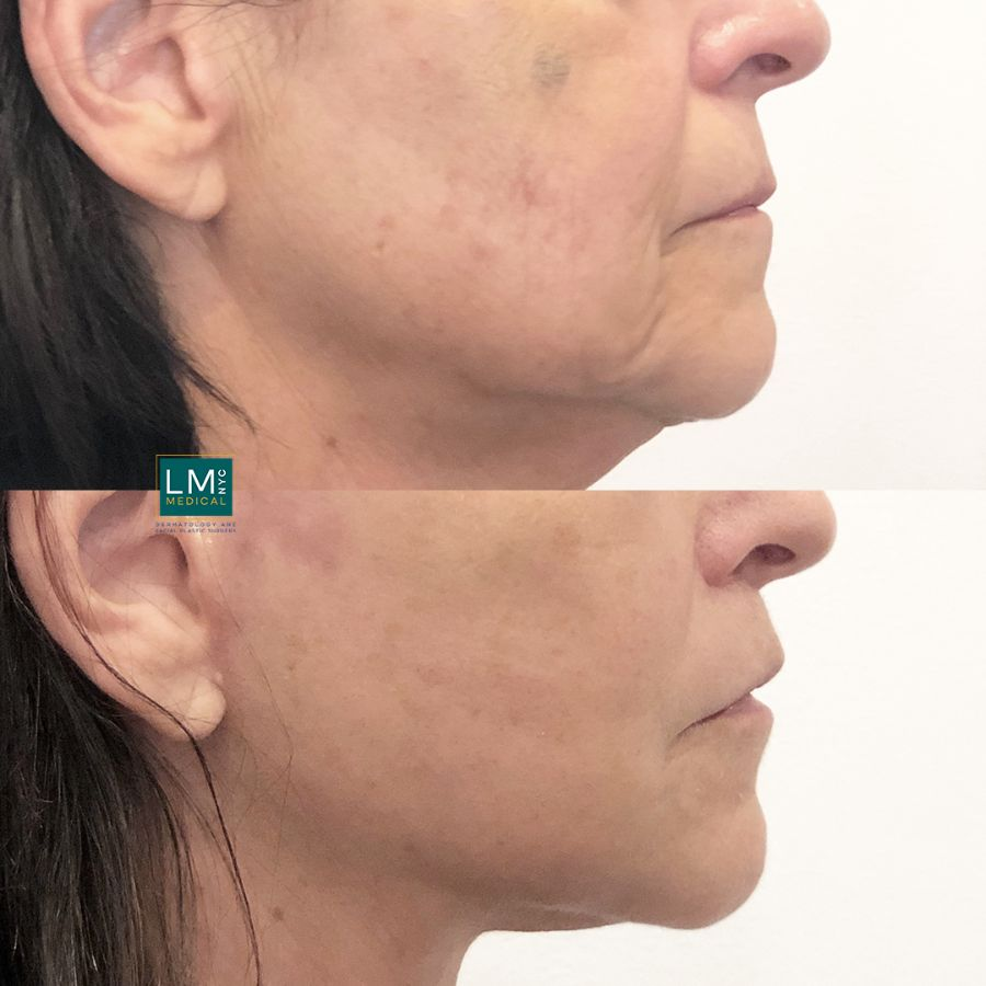 Right profile of a female patient before and after modified upper lip lift.