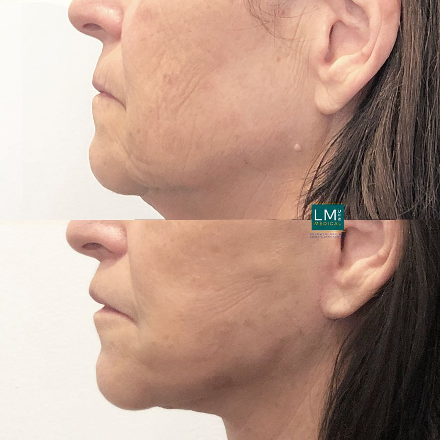 Left profile of a female patient before and after modified upper lip lift