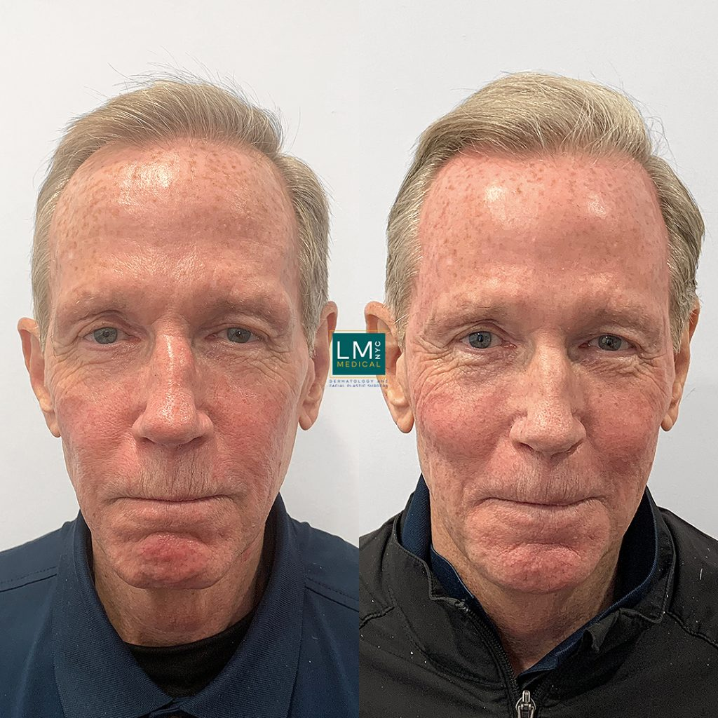 mature man before and after global face filler treatment