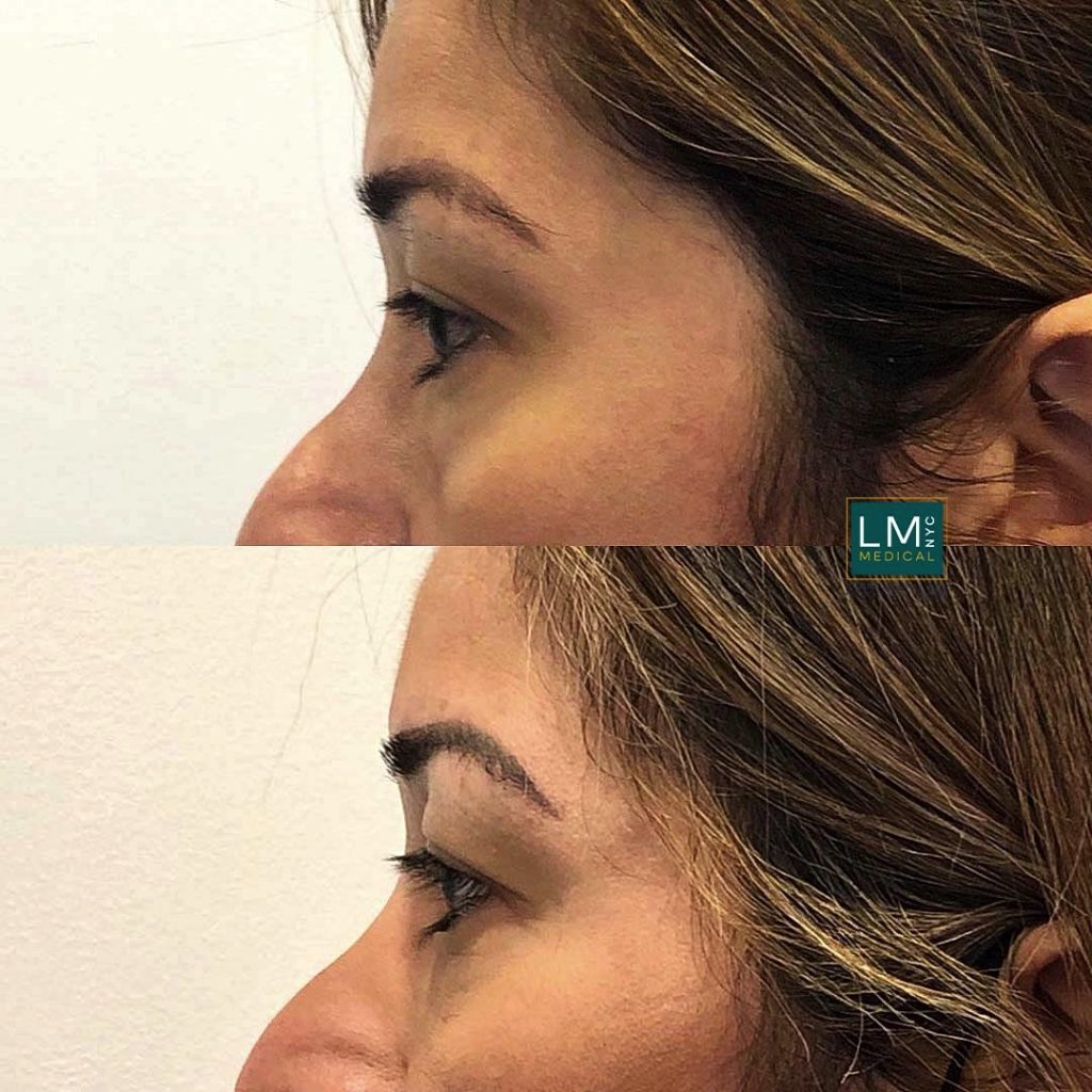 Female patient before and after blepharoplasty - left profile