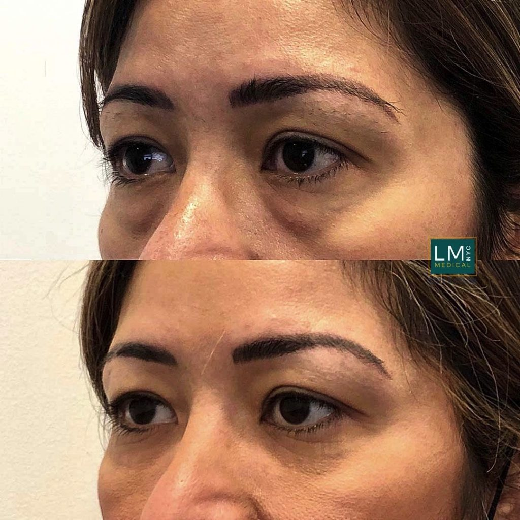 Female patient before and after blepharoplasty