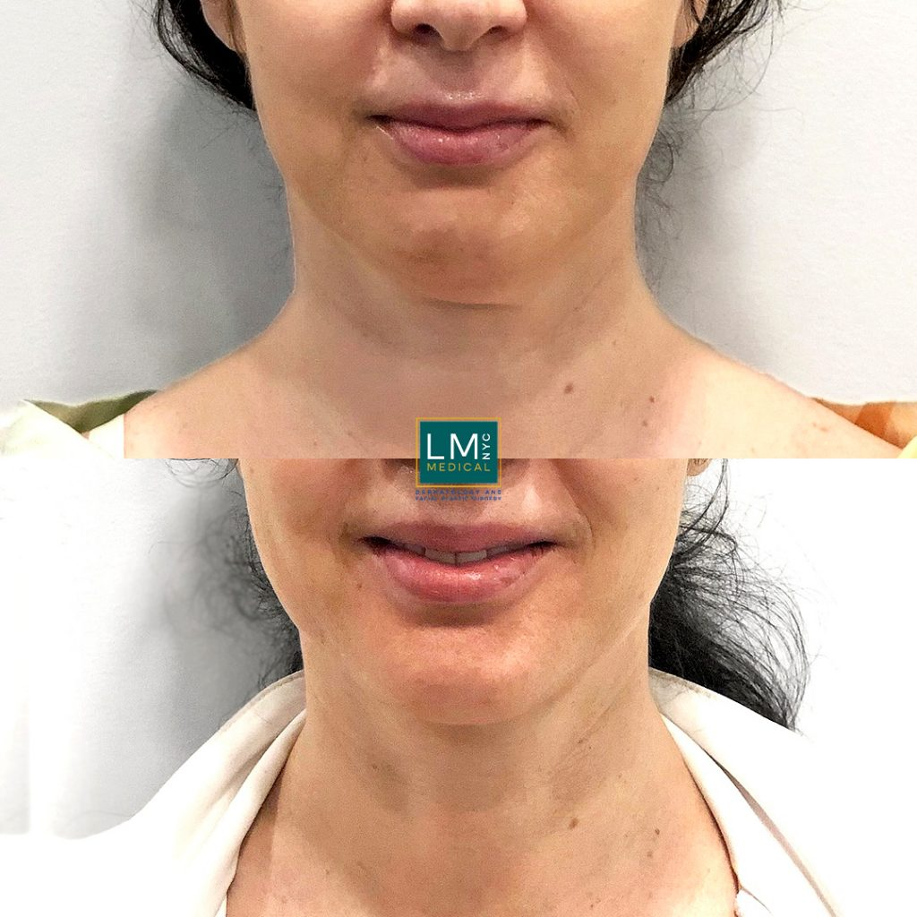 Female patient before and after submental and jawline contouring with liposuction combined with ultherapy to the lower face and jawline