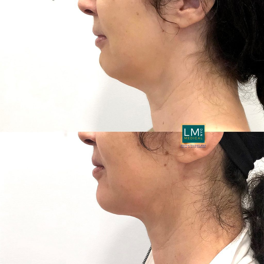 Female patient before and after submental and jawline contouring with liposuction combined with ultherapy to the lower face and jawline - left profile