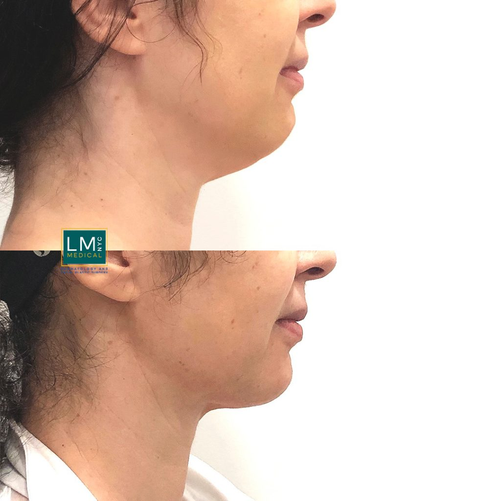 Female patient before and after submental and jawline contouring with liposuction combined with ultherapy to the lower face and jawline - right profile
