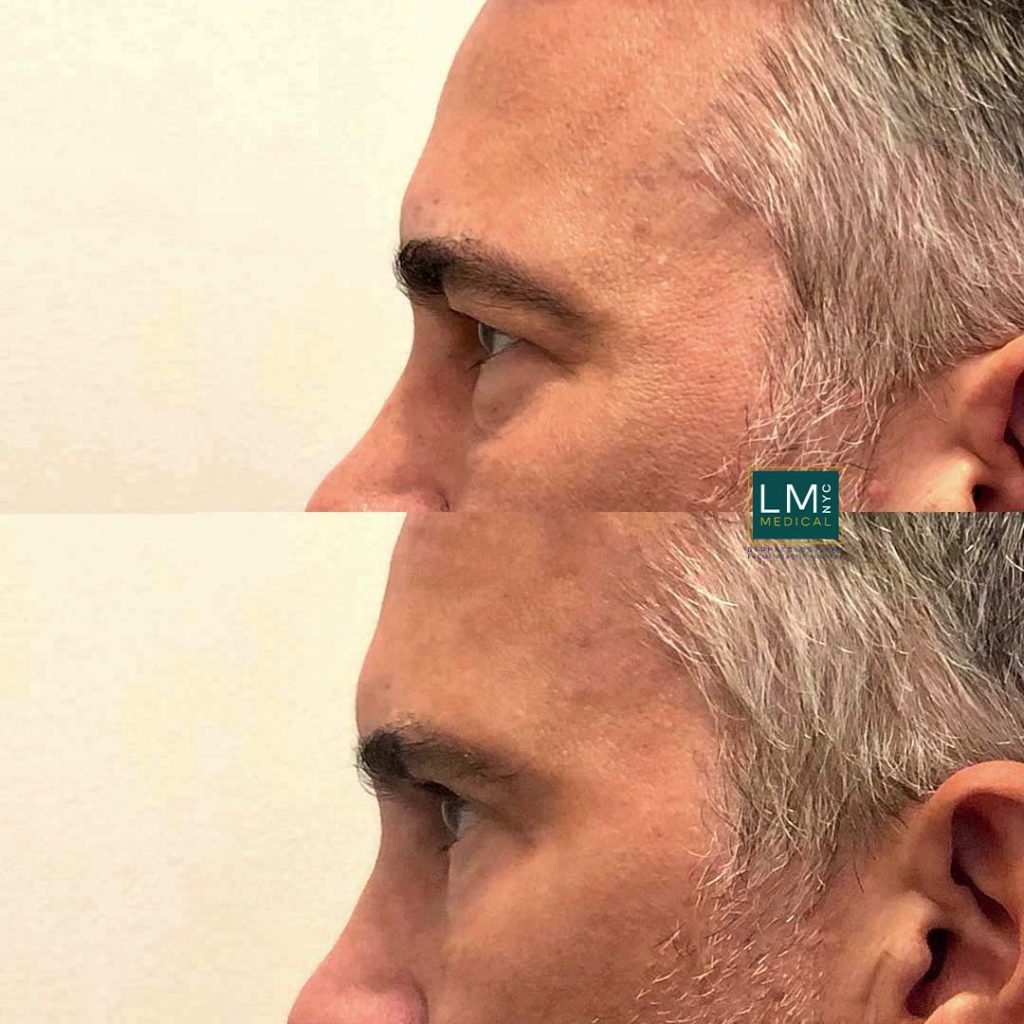 Male patient before and after blepharoplasty - left profile