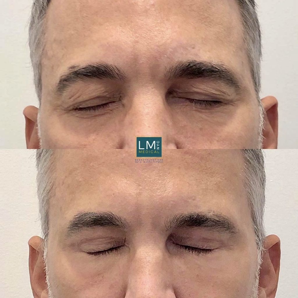 Male patient before and after blepharoplasty