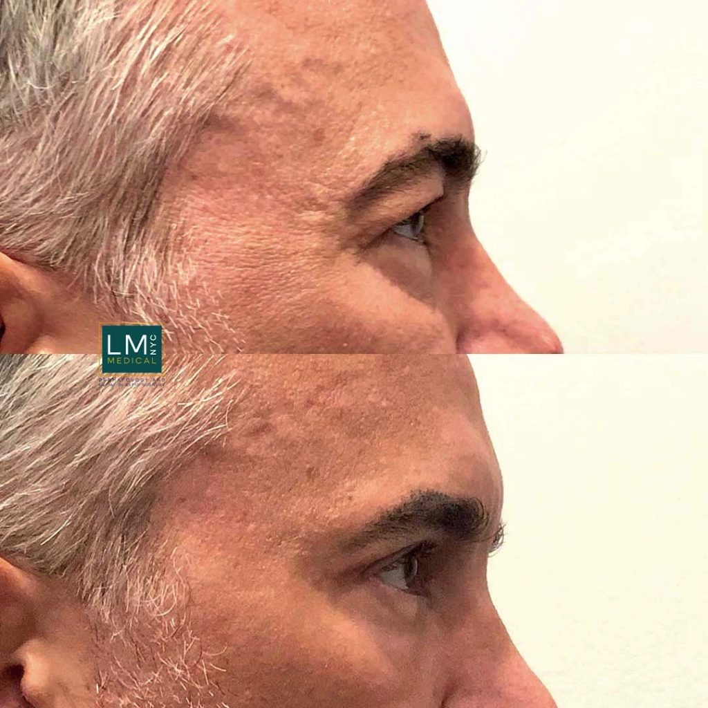 Male patient before and after blepharoplasty - right profile