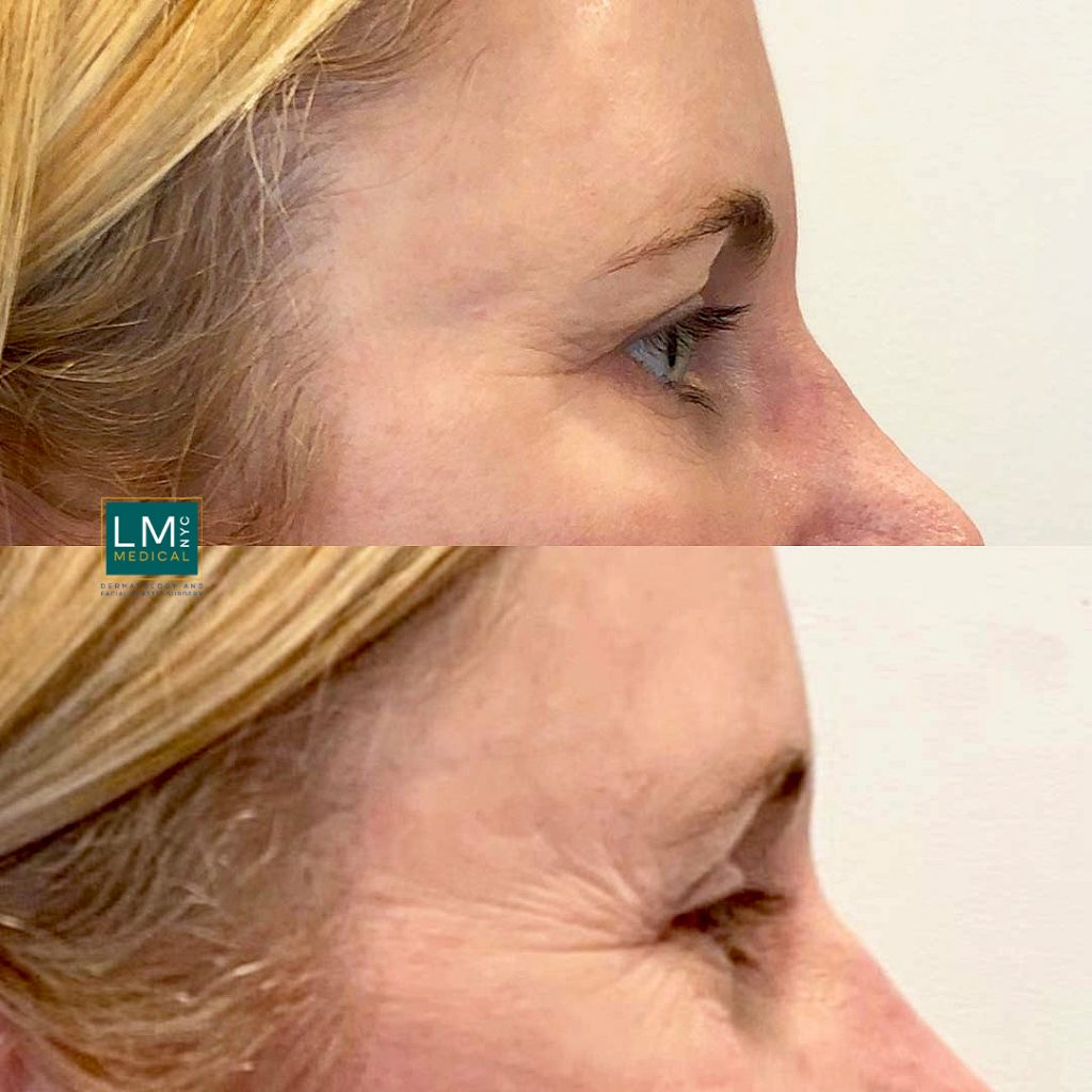 Female patient before and after blepharoplasty - right profile