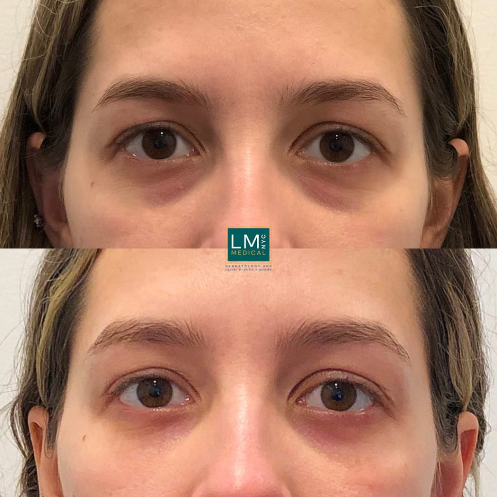 Female patient before and after lower blepharoplasty - front.