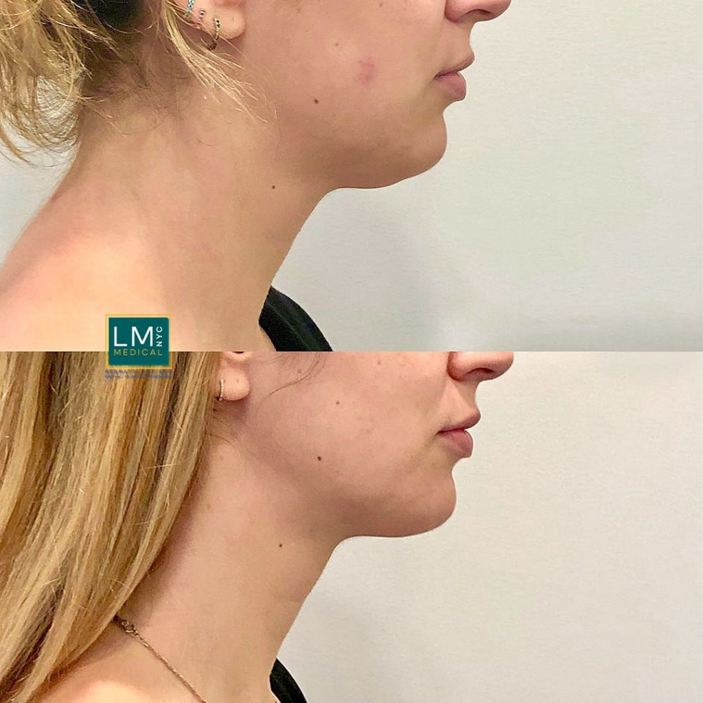 Female patient before and after after submental and jawline liposuction - right profile.