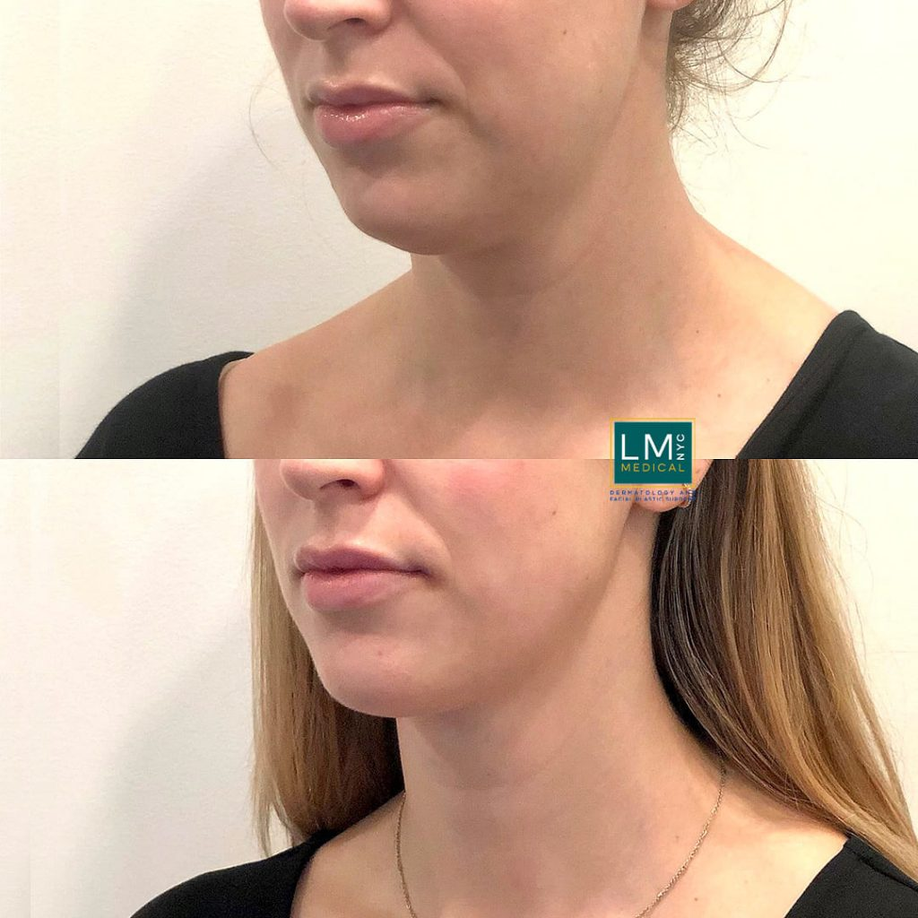 Female patient before and after after submental and jawline liposuction - left profile.