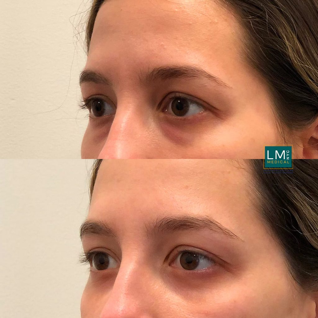 Female patient before and after lower blepharoplasty - left profile.