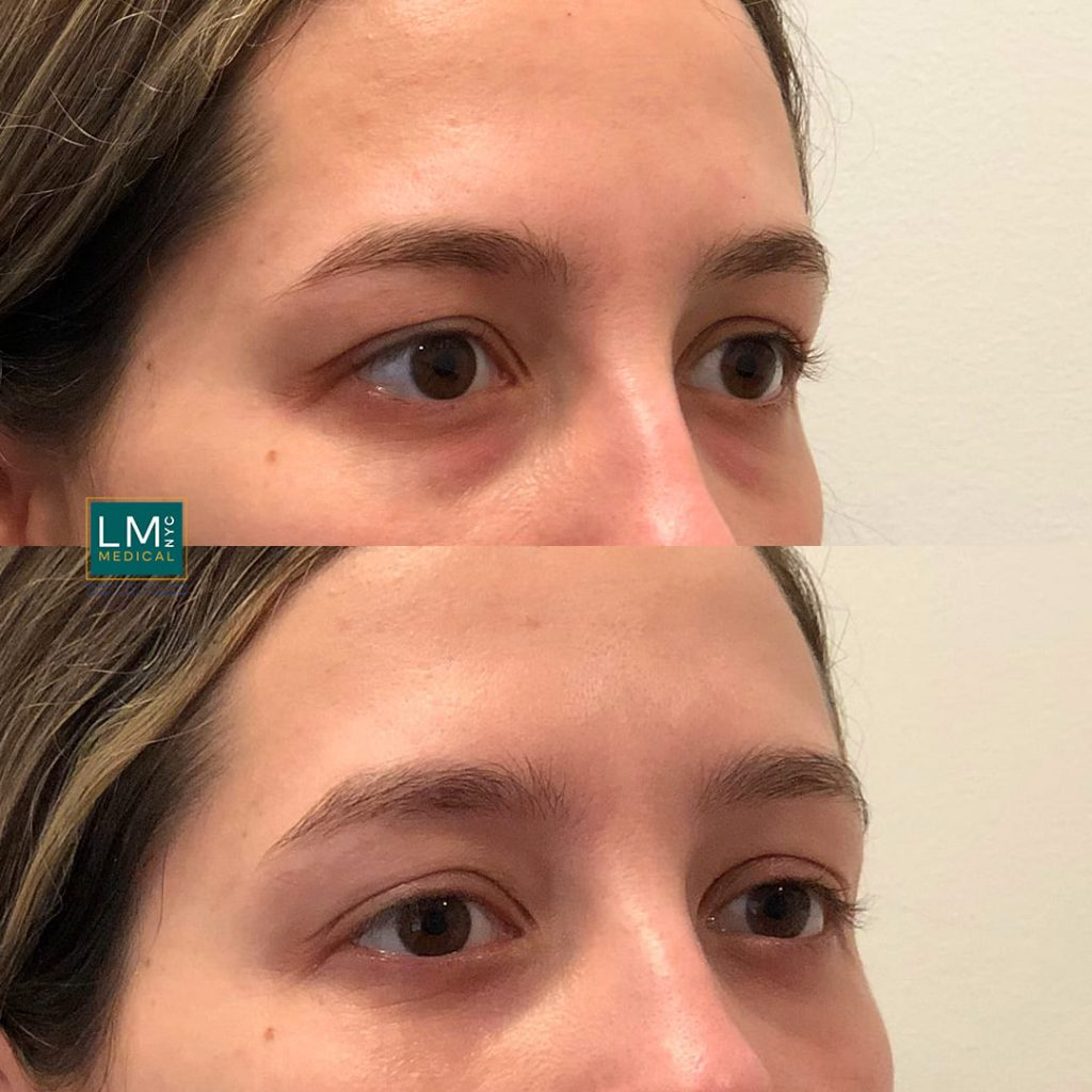 Female patient before and after lower blepharoplasty - right profile.