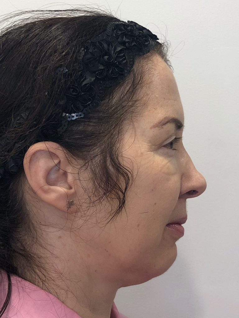Female patient before and after submental and jawline liposuction with Ultherapy of the lower face and neck - right profile.