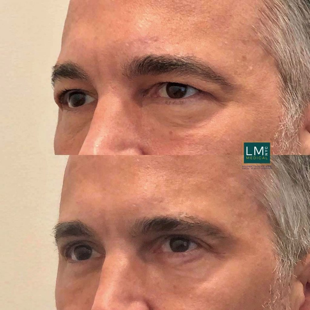 Male patient before and after upper and lower blepharoplasty - left profile.