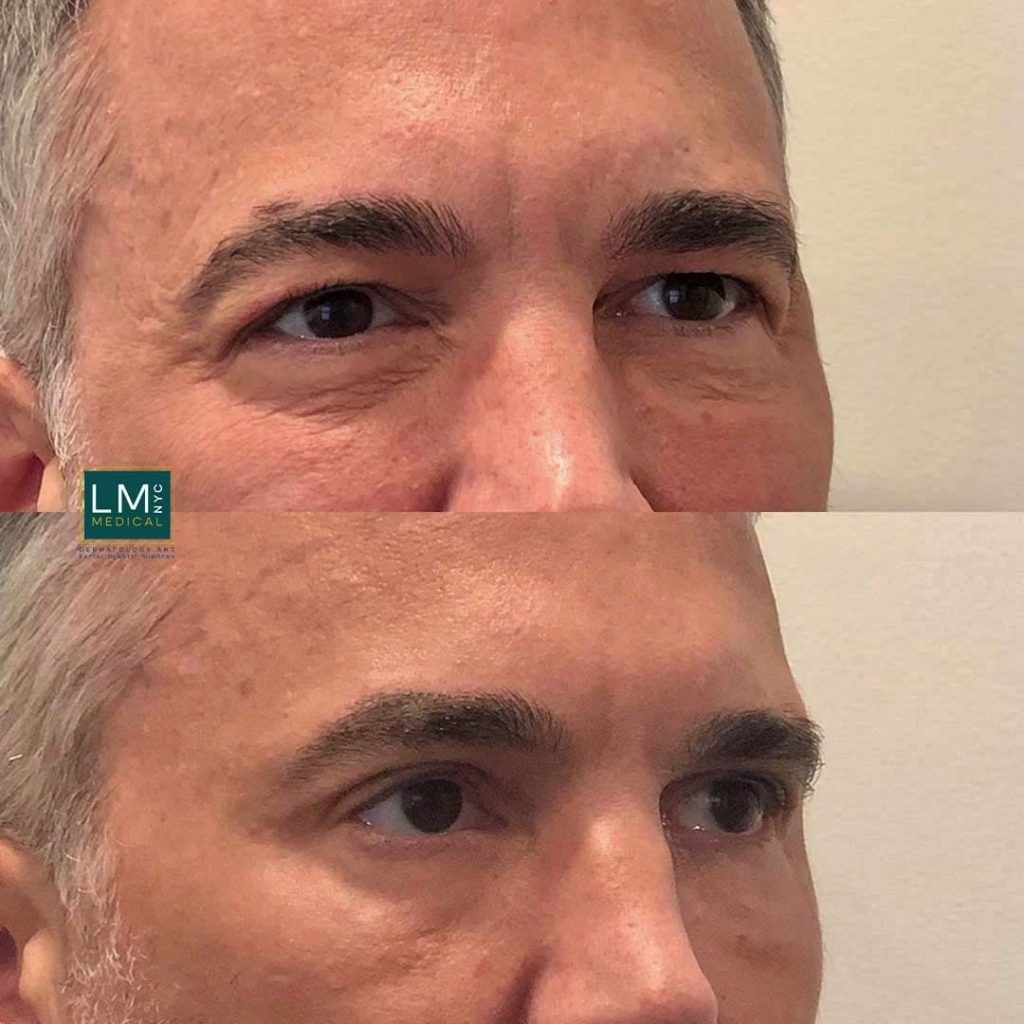 Male patient before and after upper and lower blepharoplasty - right profile.