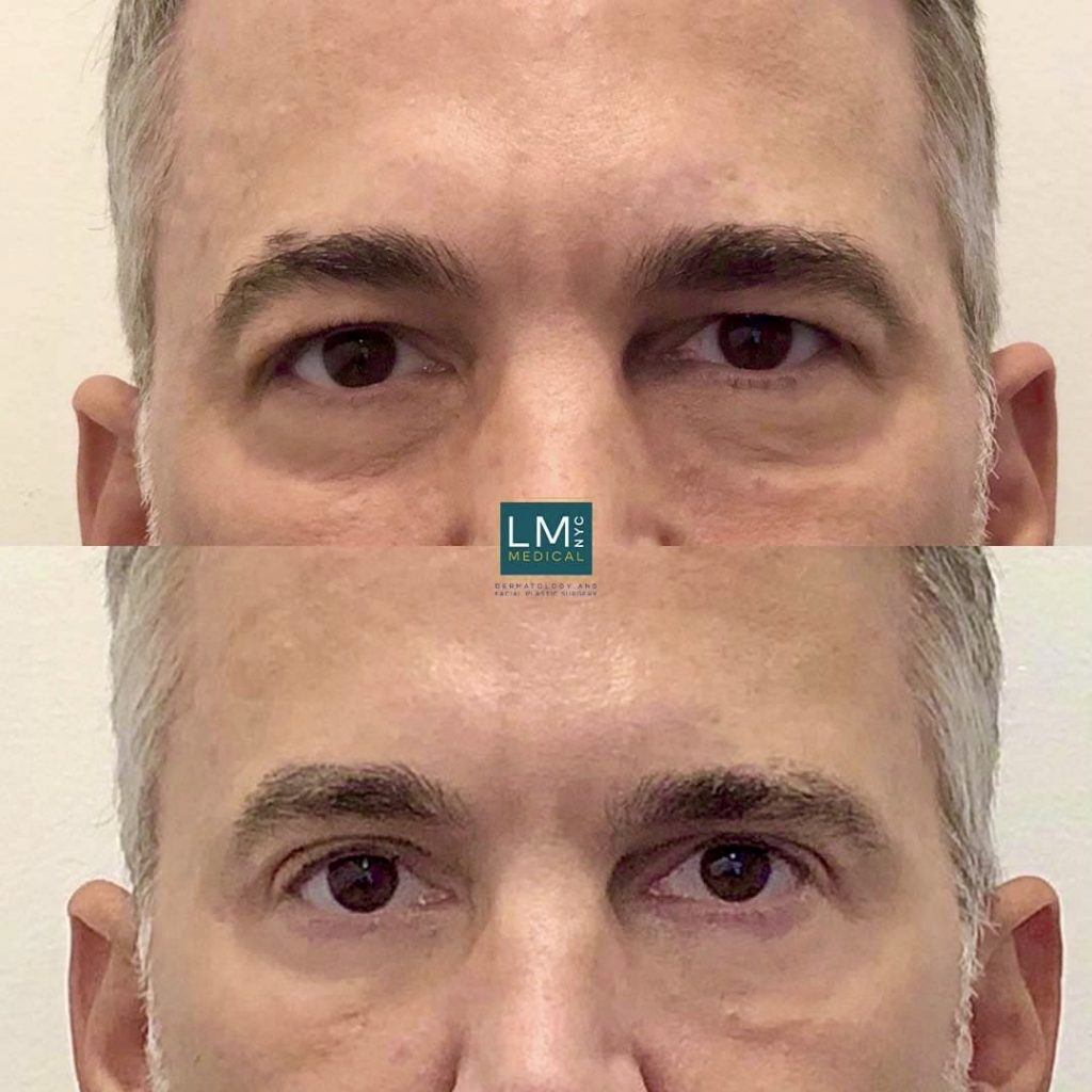 Male patient before and after upper and lower blepharoplasty - front.
