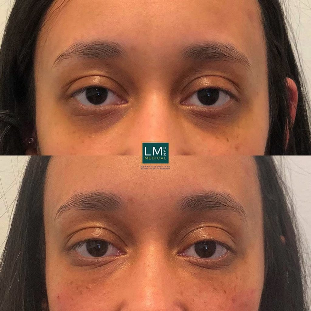 Female patient before and after undereye filler treatment - front.