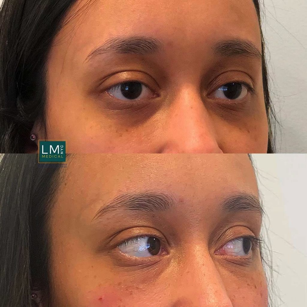 Female patient before and after undereye filler treatment - right profile.