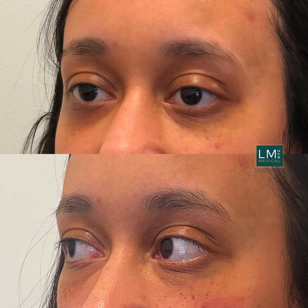 Female patient before and after undereye filler treatment - left profile.