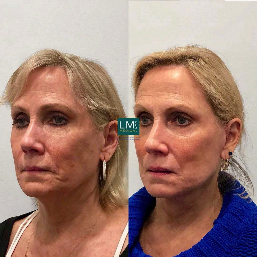 Female patient before and after deep plane face and neck lift - left profile.