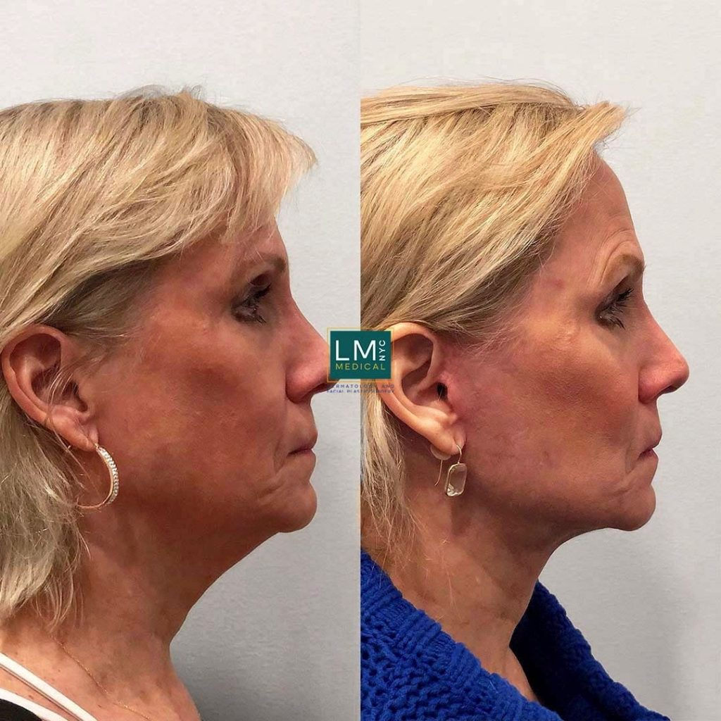 Female patient before and after deep plane face and neck lift - right profile.