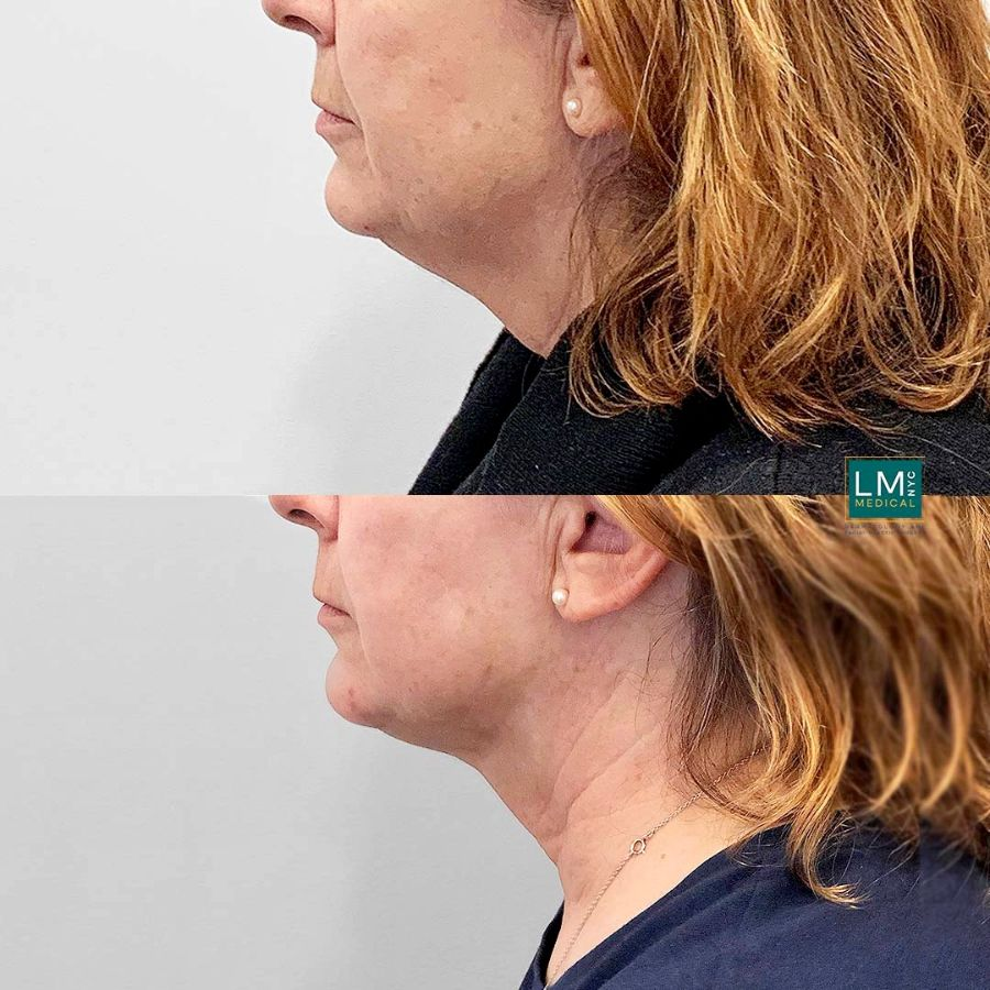 Female patient before and after submental and jawline liposuction with ultherapy - left side.