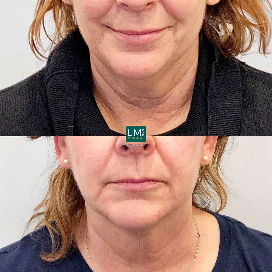 Female patient before and after submental and jawline liposuction with ultherapy - front.
