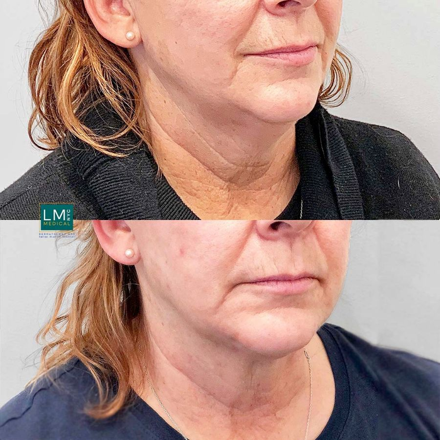 Female patient before and after submental and jawline liposuction with ultherapy - right side.