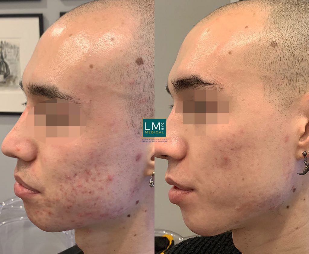 Male patient before and after multi-modality treatment for cystic acne - left profile.