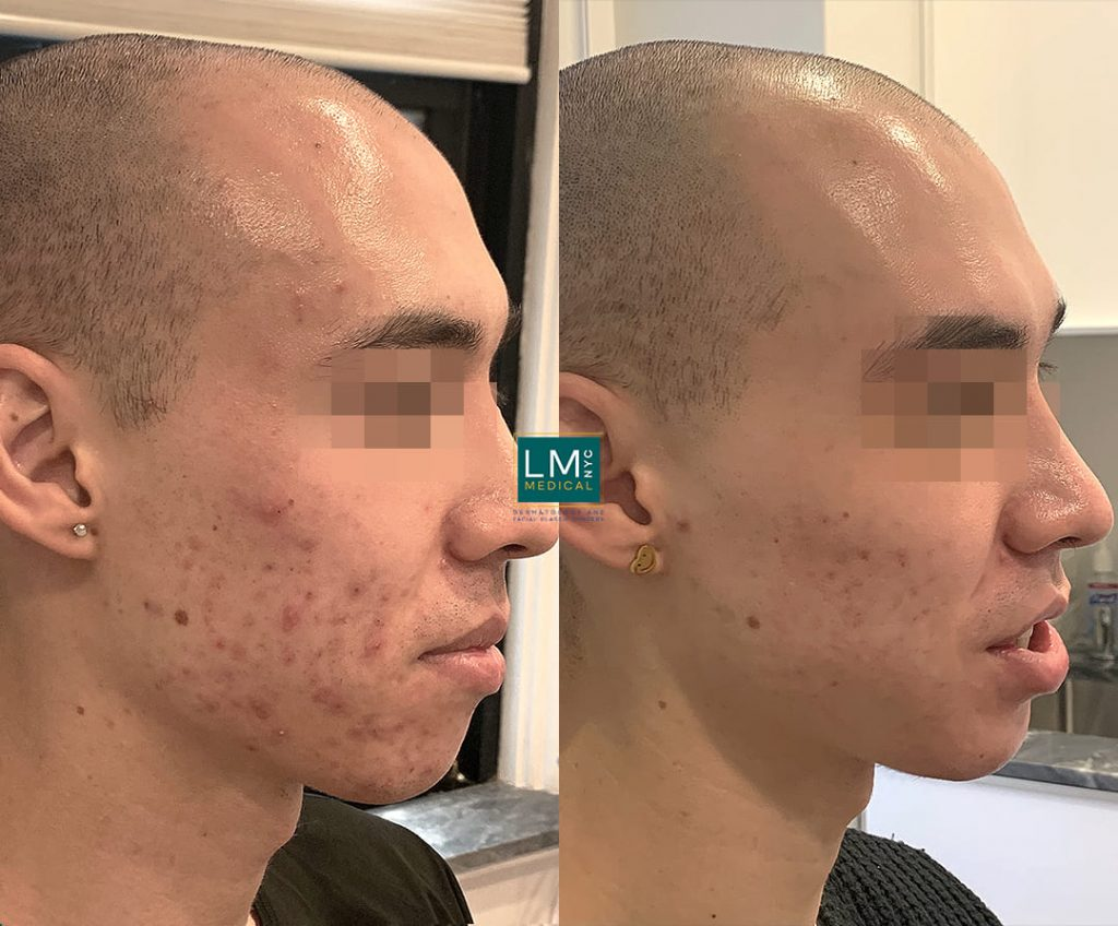 Male patient before and after multi-modality treatment for cystic acne - right profile.