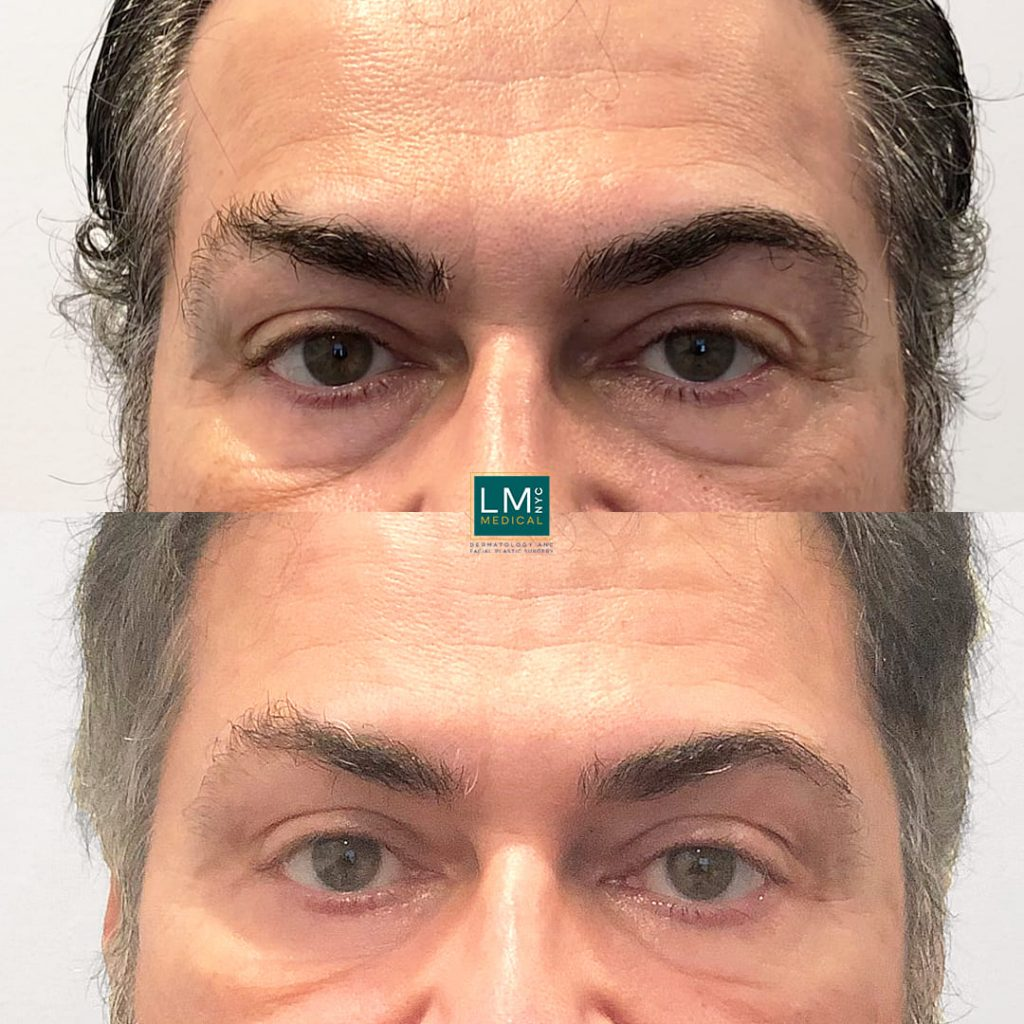 Male patient before and after lower transconjunctival blepharoplasty - front.