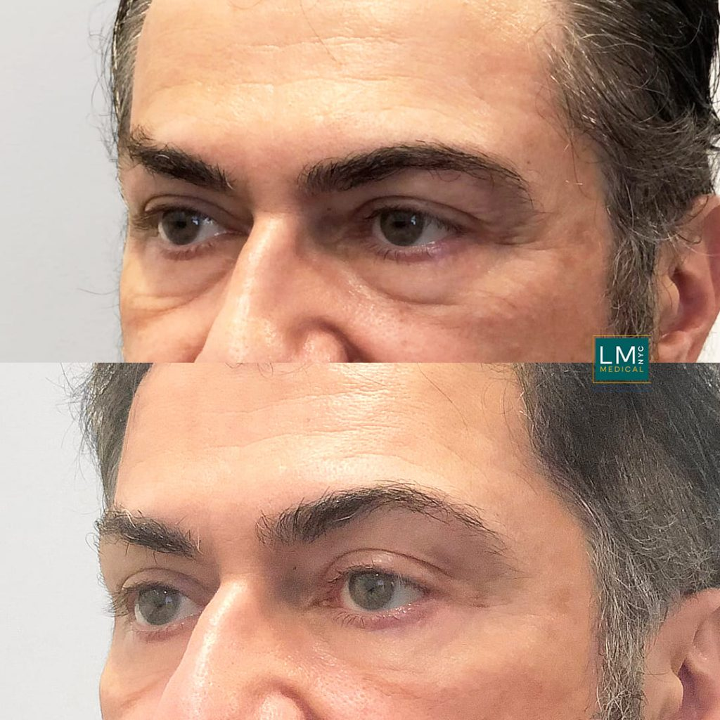 Male patient before and after lower transconjunctival blepharoplasty - left profile.