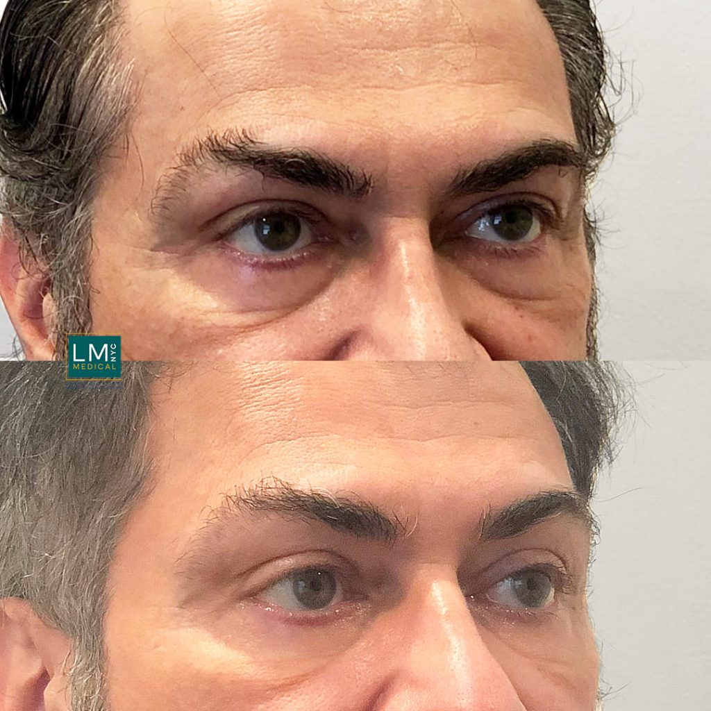 Male patient before and after lower transconjunctival blepharoplasty - right profile.