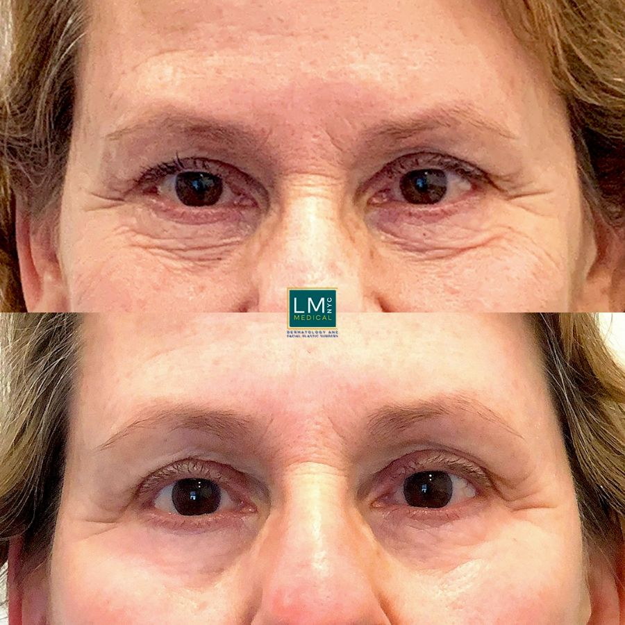 Female patient before and after TCA to the lower eyelids - front.