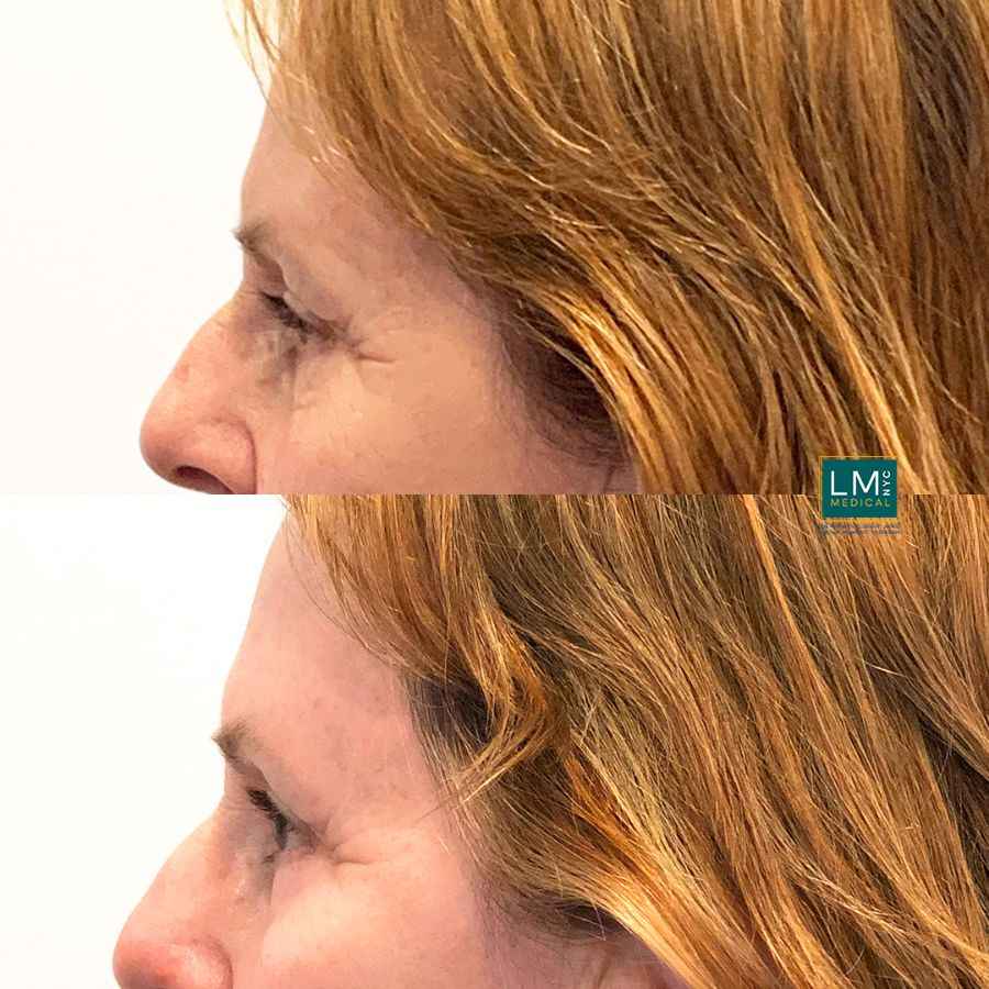 Female patient before and after TCA to the lower eyelids - left side.