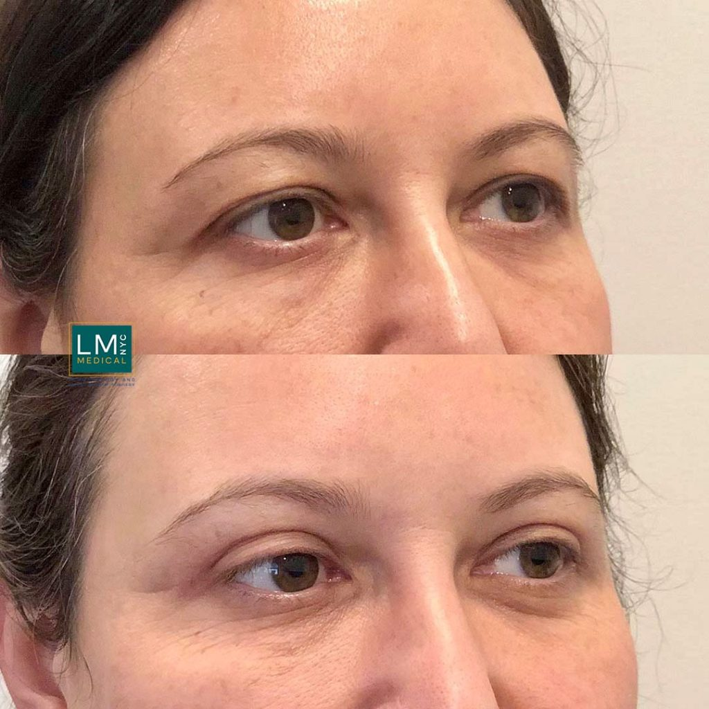 Female patient before and after upper eyelid blepharoplasty - right profile.