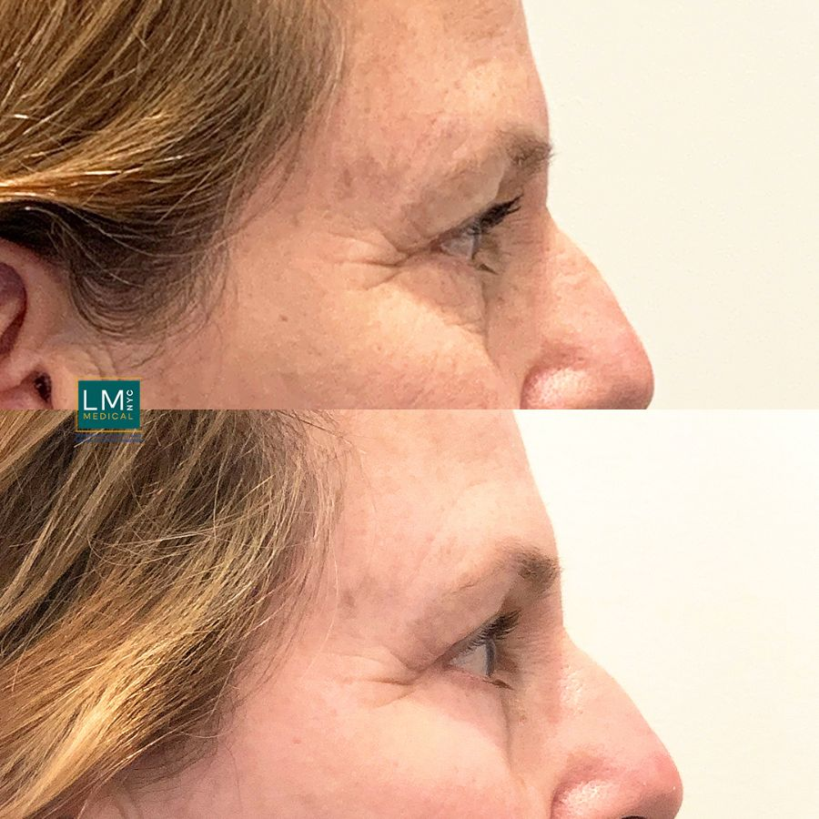 Female patient before and after TCA to the lower eyelids - right side.