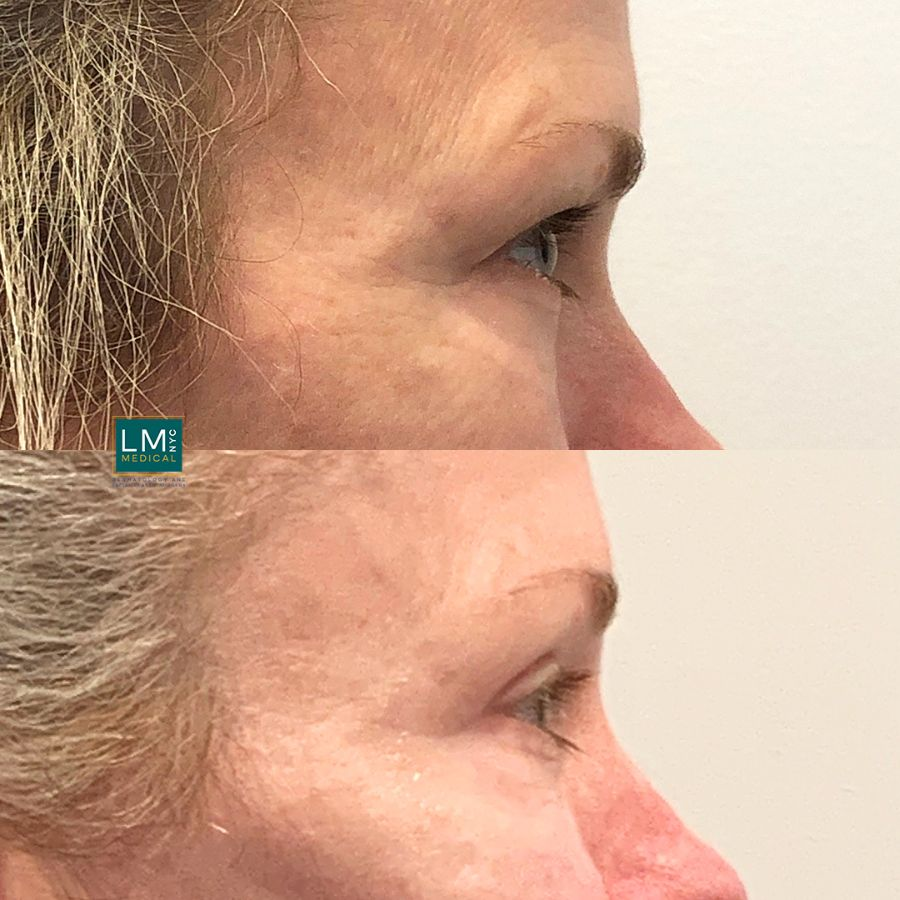 Female patient before and after upper eyelid blepharoplasty - right side.
