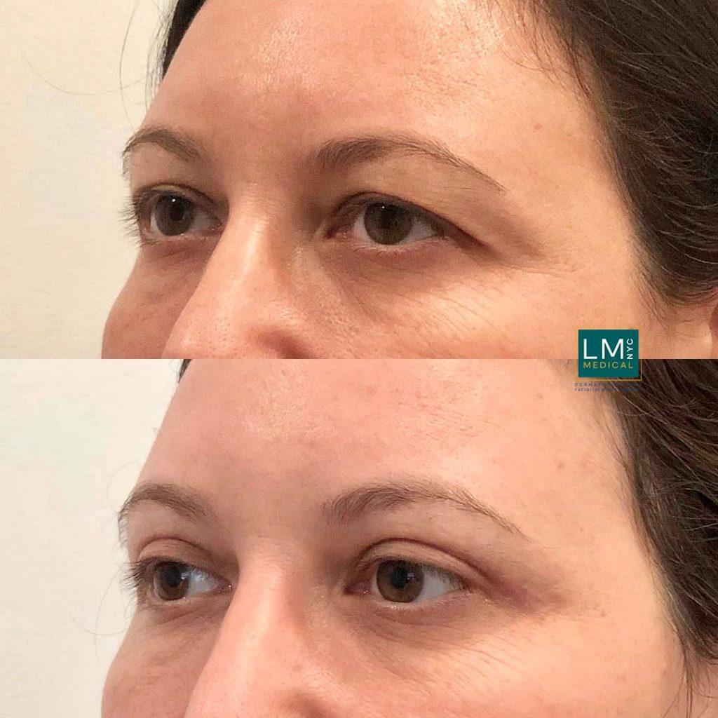 Female patient before and after upper eyelid blepharoplasty - left profile.
