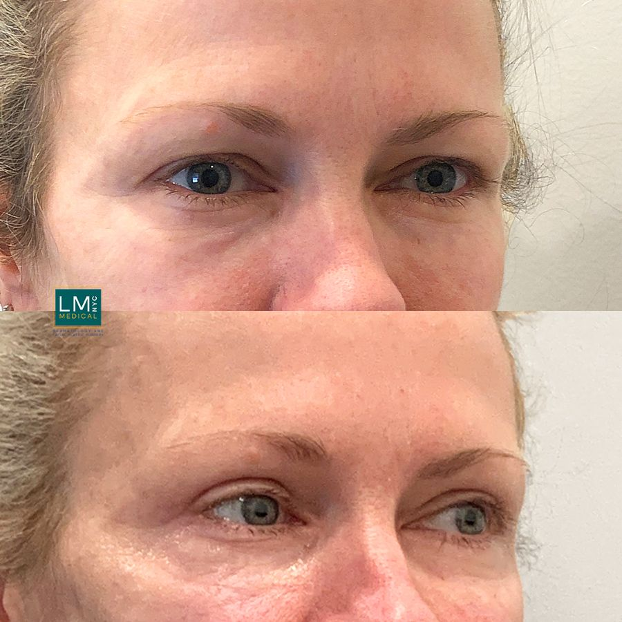 Female patient before and after upper eyelid blepharoplasty - front.